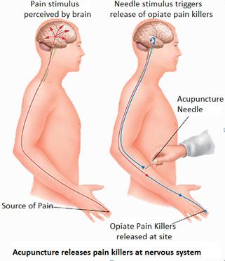 Pain Alternative Treatment Acupuncture Acupressure Nashik