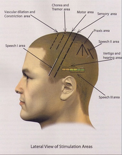 Ear auricular acupuncture for pain relief treatment Nashik on acupuncture points map, acupuncture needle placement map, face acupuncture map, foot acupuncture map, acupuncture meridian map, eye acupuncture map, nervous chinese acupuncture map, tongue acupuncture map, auricular acupuncture map, acupuncture brain map, ear acupuncture map,