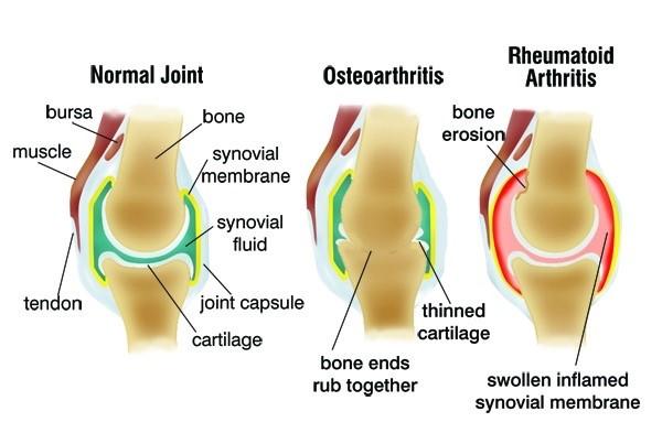 osteoarthritis stick hurt treatment